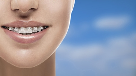 La ortodoncia en Guadalajara puede ser de diferentes tipos, entre ellos, está la de brackets de zafiro.