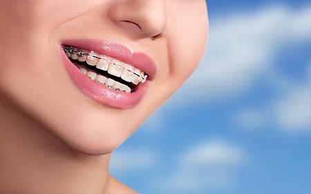 El tratamiento de ortodoncia no es doloroso, aunque sí un poco molesto al principio del proceso.