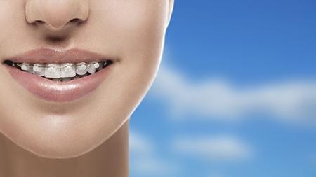 La ortodoncia estética o de zafiro es ideal para corregir la mala posición de los dientes en adultos.