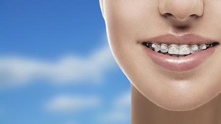 La ortodoncia estética o de zafiro está hecha de brackets transparentes.