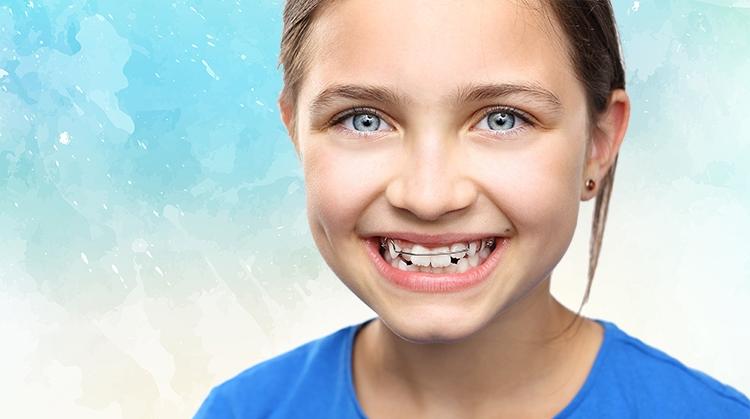 La ortodoncia en Alcorcón es la parte de la odontología que se encarga de corregir la mala posición de los dientes.