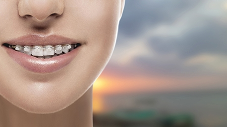 La ortodoncia estética o de zafiro es prácticamente invisible.