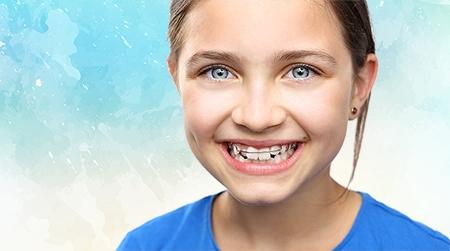 Para los niños, el tipo de ortodoncia más recomendado es la metálica.