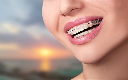 El color de los brackets estéticos es idéntico al de los dientes, por lo que son imperceptibles.