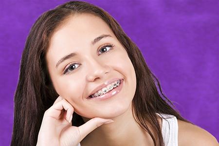 La duración del tratamiento de ortodoncia depende de la complejidad del problema que haya que solucionar.