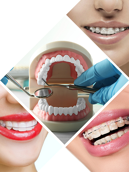 Los defectos en los dientes se estudian en la consulta del dentista, mediante una serie de técnicas específicas.