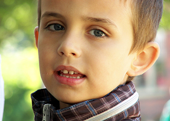La otoplastia en Valencia es una operación realizada, en gran medida, en niños