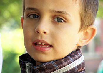 La otoplastia en Málaga es una cirugía perfectamente indicada en niños a partir de los 6 o 7 años de edad