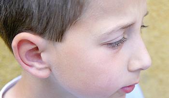 La otoplastia en Madrid es una de las intervenciones más realizadas en niños