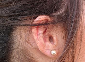 El postoperatorio de la otoplastia en Madrid suele ser fácil y sin complicaciones