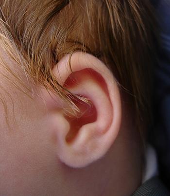 El riesgo más común de la otoplastia es el de las infecciones que se solucionan con la medicación adecuada