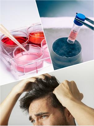 La utilización de plasma rico en plaquetas para frenar la alopecia en Málaga es relativamente reciente.