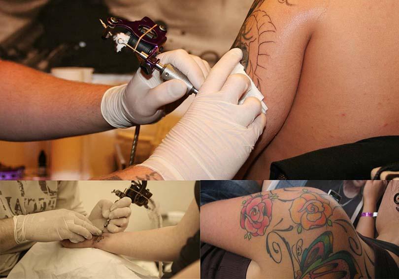 Hay varias técnicas para quitar tatuajes en Málaga.