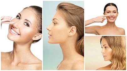 La rinoplastia en Barcelona es una de las operaciones de cirugía estética más 'populares' entre la población joven.
