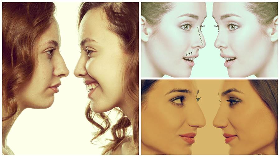 No se aconseja realizar la rinoplastia antes de 15 o 16 años, pues hay que esperar a que se complete el desarrollo facial.