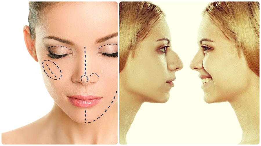 Una de las intervenciones estéticas más populares para cambiar la forma de la nariz es la rinoplastia en A Coruña.