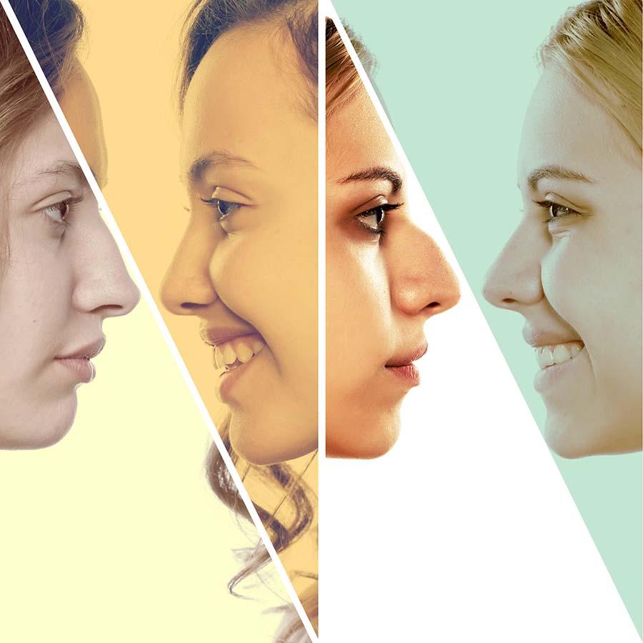 Para mejorar la estética de la nariz la rinoplastia en Gijón es la mejor opción.