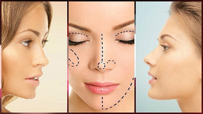 Es muy poco probable que se presenten complicaciones durante y tras la cirugía.