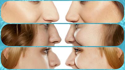La rinoplastia permite corregir numerosos problemas respiratorios y estéticos.