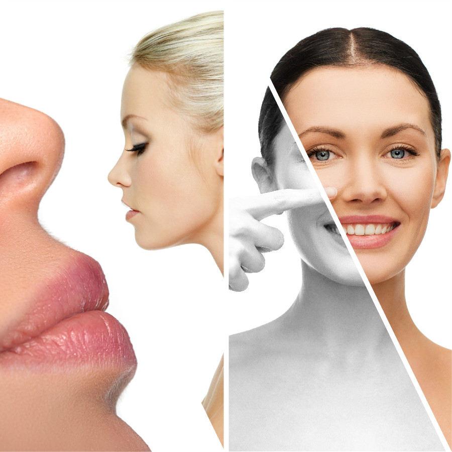 La rinoplastia puede ser abierta o cerrada, según el defecto nasal que se desee corregir.
