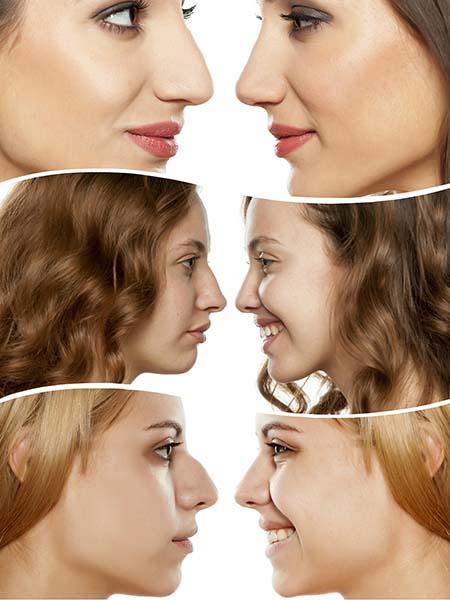 Normalmente, hay que esperar un año para ver los resultados definitivos de la operación de nariz.