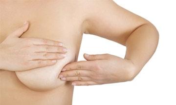 Elevación de pechos (mastopexia) sin prótesis en Pamplona