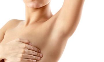 Tratamiento para la sudoración en axilas con Botox en Málaga