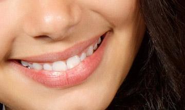 Corona dental de porcelana en Málaga