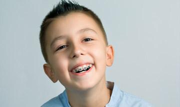 Ortodoncia interceptiva para niños en Málaga