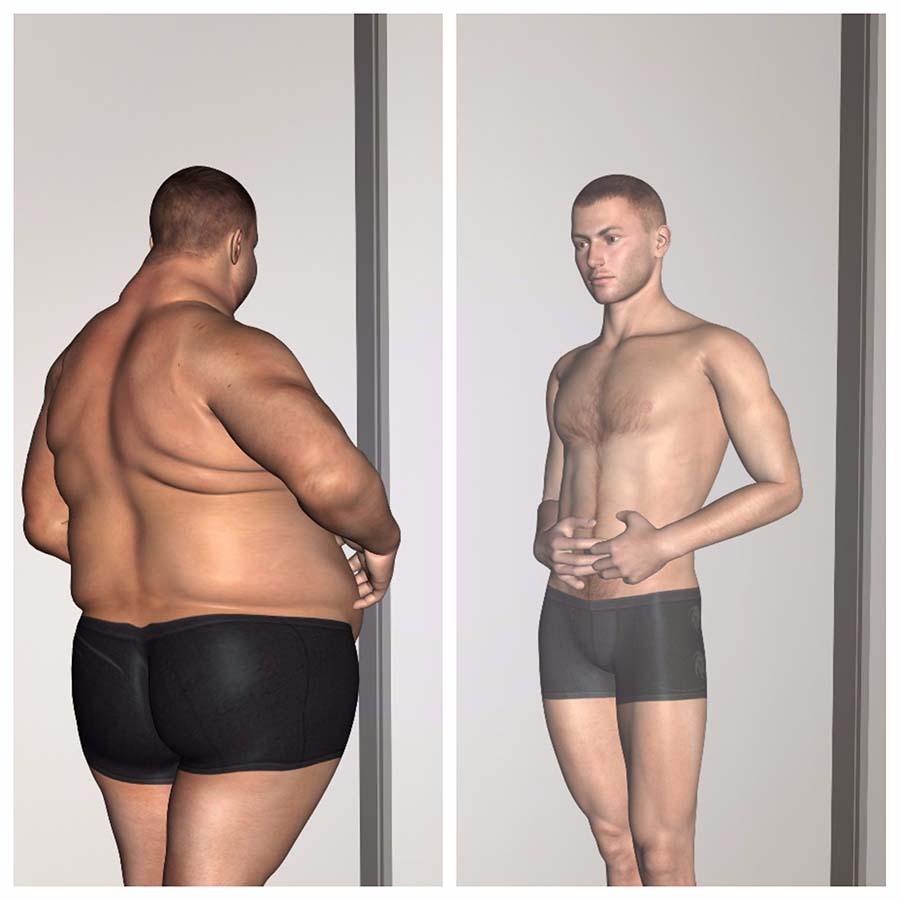 Después de la operación de bypass gástrico en Sevilla el paciente perderá mucho peso en poco tiempo.