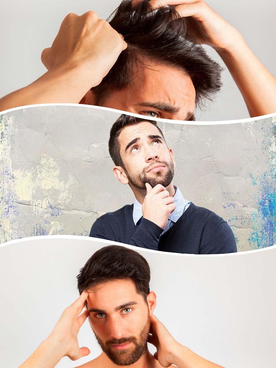 L'alopècia androgènica, també coneguda com calvície comuna, consisteix en la pèrdua precoç i anormal del cabell